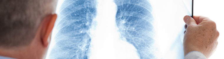 Learning More About Pneumonia and the Elderly